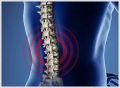 Apex Chiropractic Center